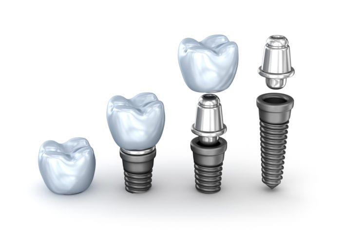 Tooth implants in Rogers, AR